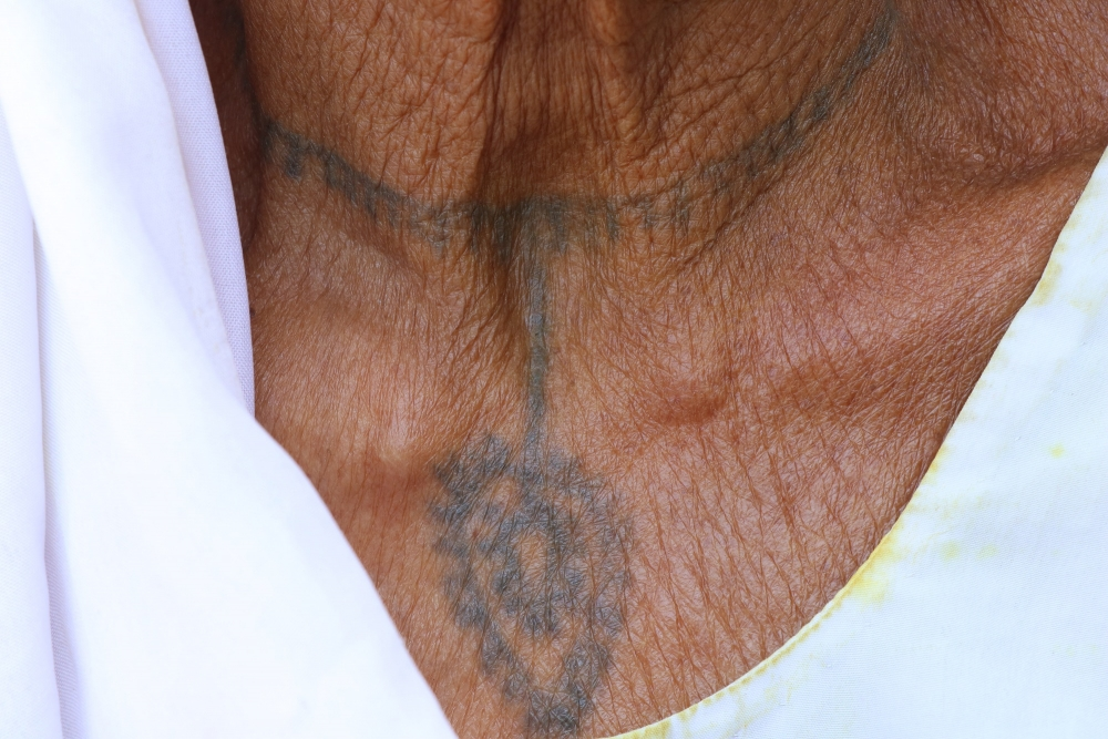 A woman with godna on her neck